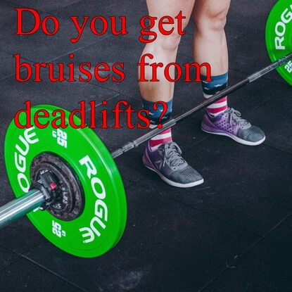 Comprehensive Guide on Deadlift Bruises. How To Avoid Them!