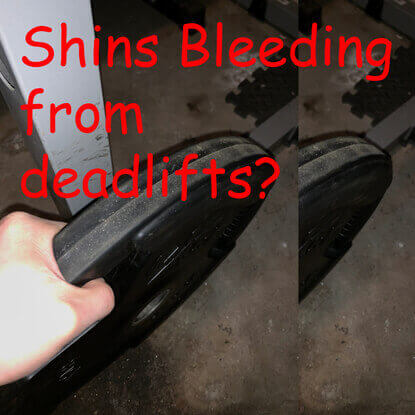 Stop Your Shins From Crying (Bleeding)? A Must Read Guide.